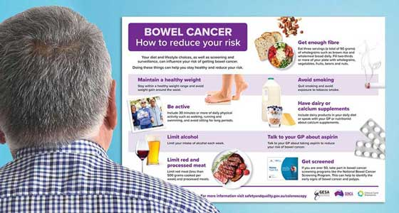 Bowel cancer fact sheet
