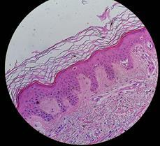 Melanoma image from Wikepedia Commons